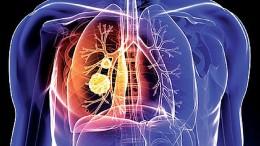 pulmonology
